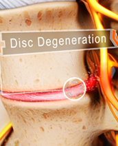 Degenerative Disc(s)